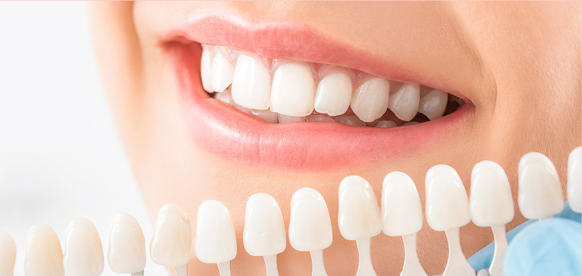 An image to illustrate the dentist checking which porcelain crown is the best match for the natural color of the patient's tooth.