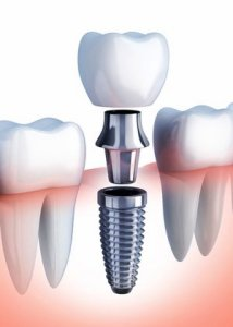 An image showing the main parts of a dental implant